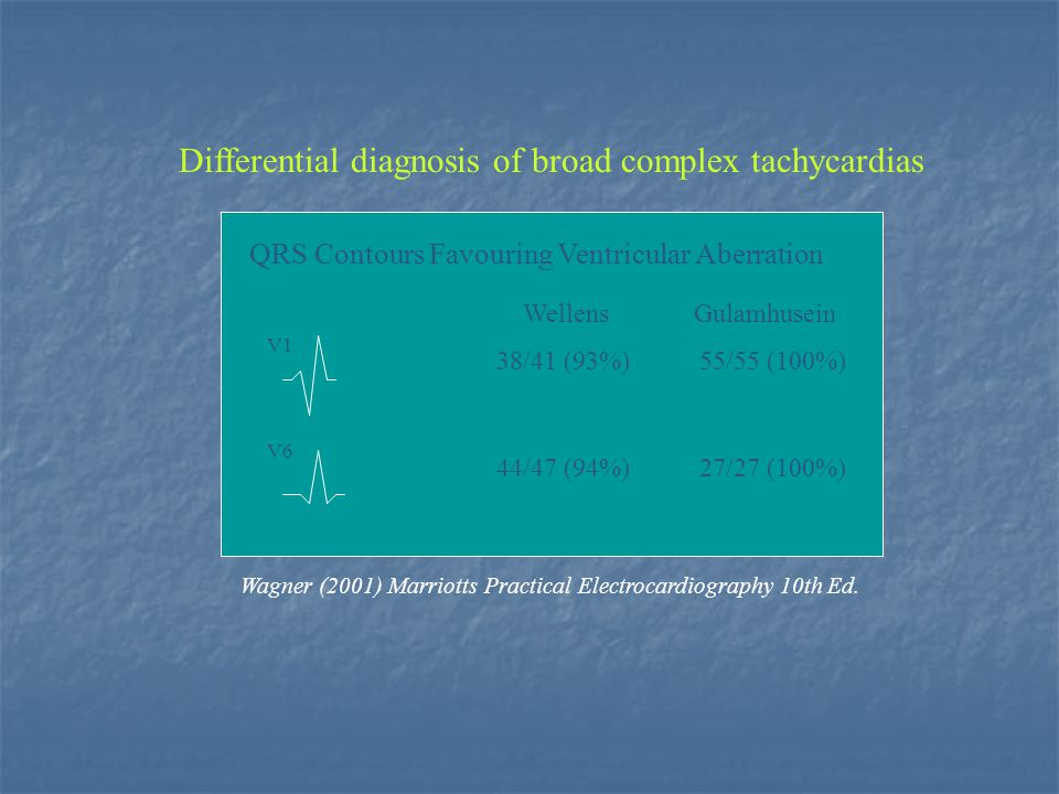Differential diagnosis of broad complex tachycardias QRS Contours Favouring Ventricular Aberration Wellens Gulamhusein V1 V6 38/41 (93%)55/55 (100%) 4