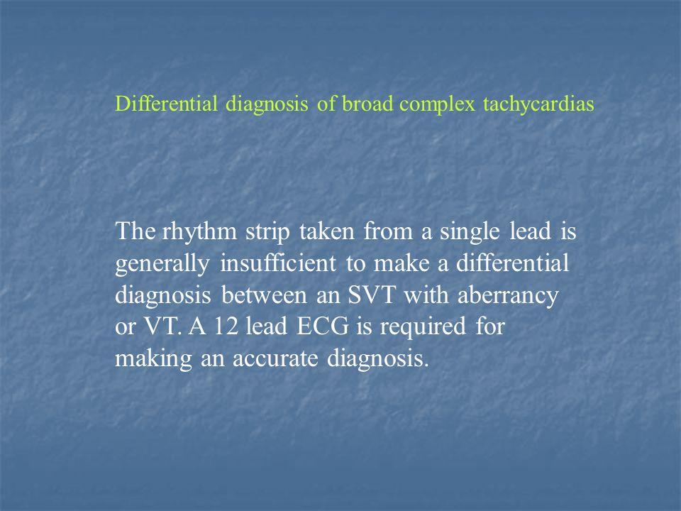 Tachycardias presenting with a basically RBB pattern Differential diagnosis of broad complex tachycardias V6 R:S >1 SVT R:S <1 VT Professor A.J Camm: A Master Class in The Differential Diagnosis of Broad Complex Tachycardias.