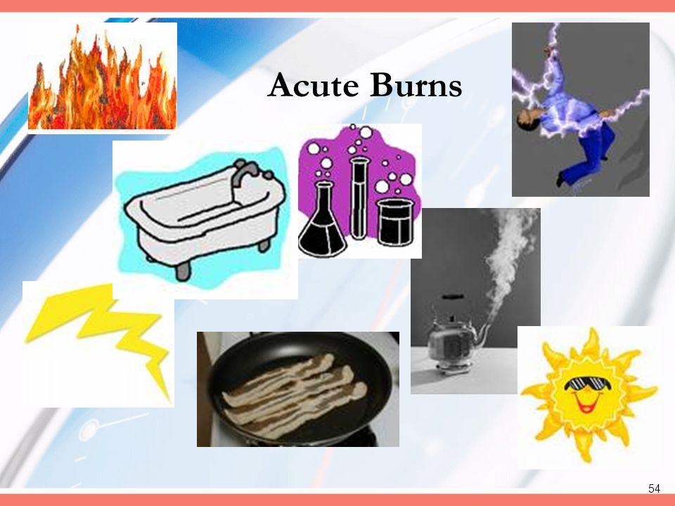 54 Acute Burns