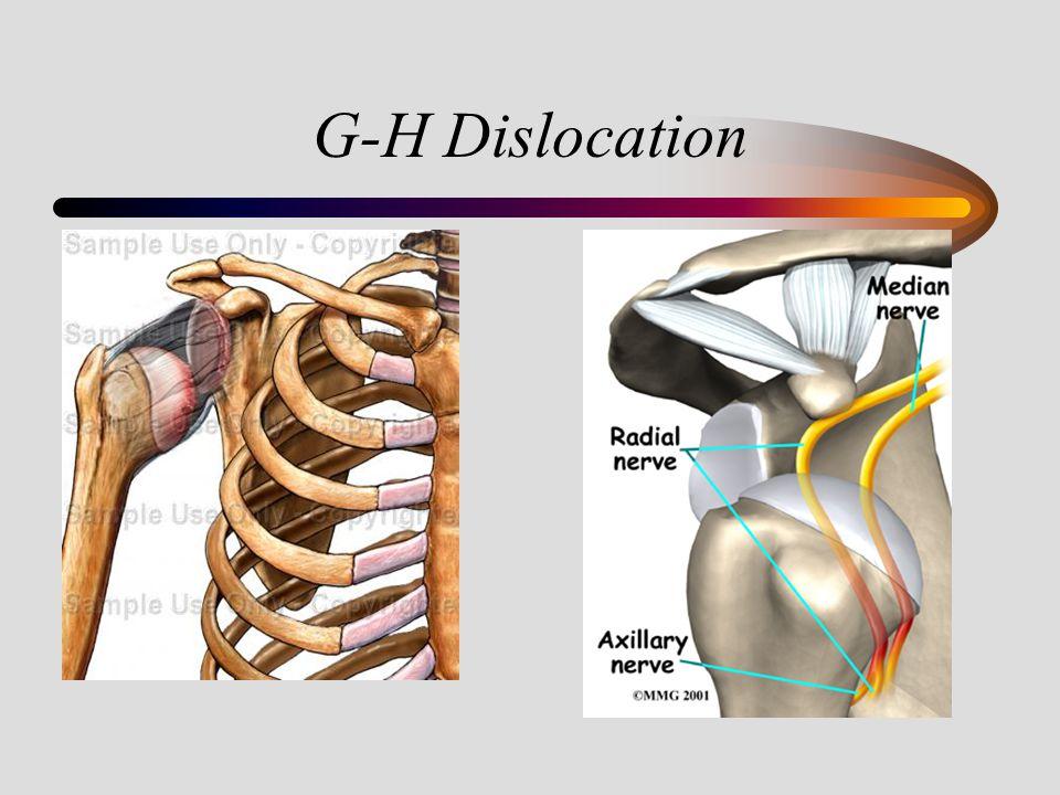 G-H Dislocation