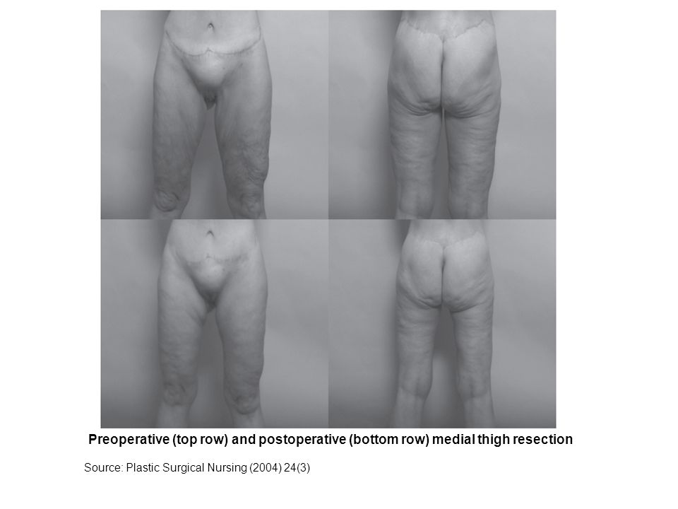 Preoperative (top row) and postoperative (bottom row) medial thigh resection Source: Plastic Surgical Nursing (2004) 24(3)