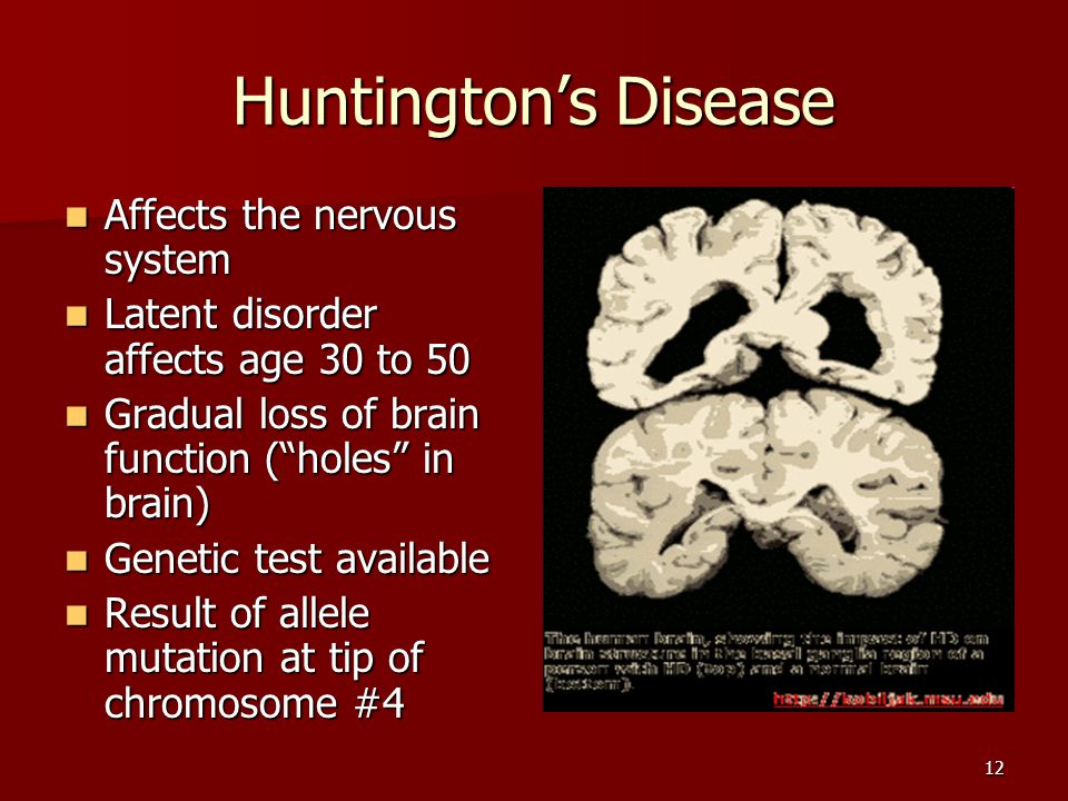 12 Huntingtons Disease Affects the nervous system Affects the nervous system Latent disorder affects age 30 to 50 Latent disorder affects age 30 to 50 Gradual loss of brain function (holes in brain) Gradual loss of brain function (holes in brain) Genetic test available Genetic test available Result of allele mutation at tip of chromosome #4 Result of allele mutation at tip of chromosome #4