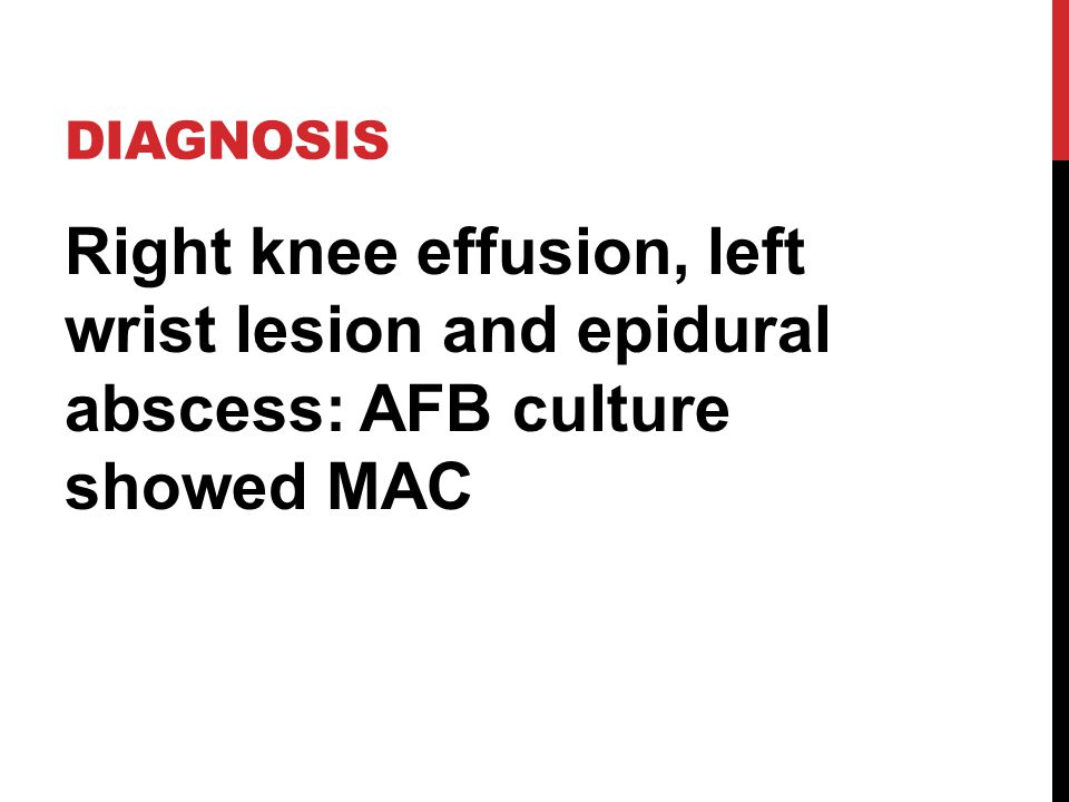 DIAGNOSIS Right knee effusion, left wrist lesion and epidural abscess: AFB culture showed MAC