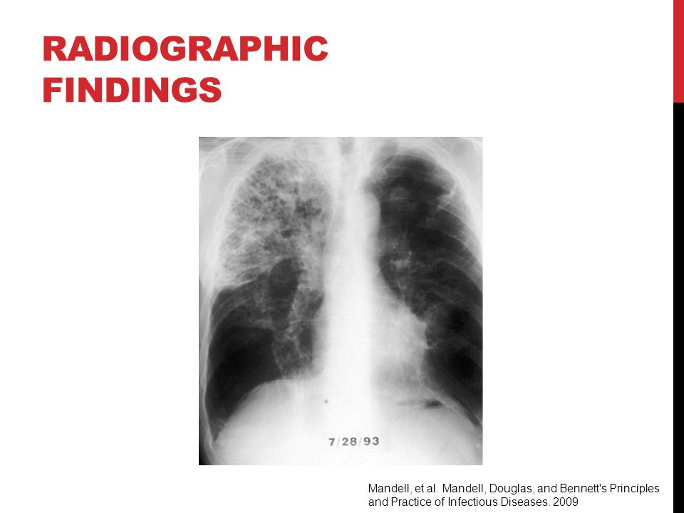 RADIOGRAPHIC FINDINGS Mandell, et al.