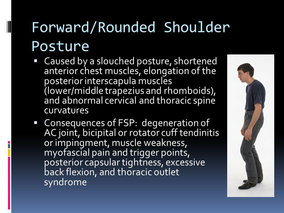 Forward/Rounded Shoulder Posture Caused by a slouched posture, shortened anterior chest muscles, elongation of the posterior interscapula muscles (low