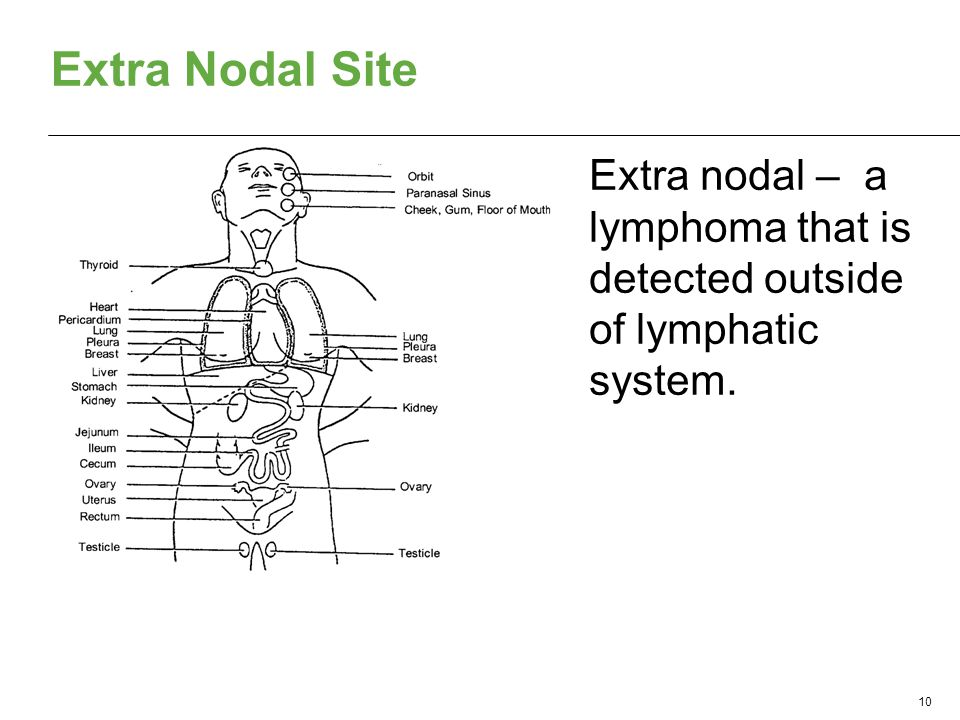 Extra Nodal Site 10 Extra nodal – a lymphoma that is detected outside of lymphatic system.