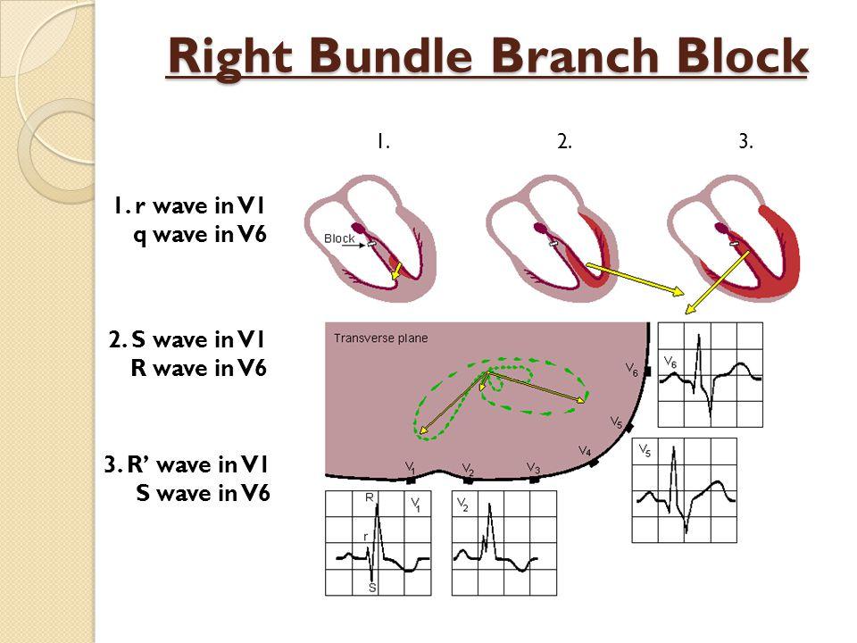 Right Bundle Branch Block 1.r wave in V1 q wave in V6 2.