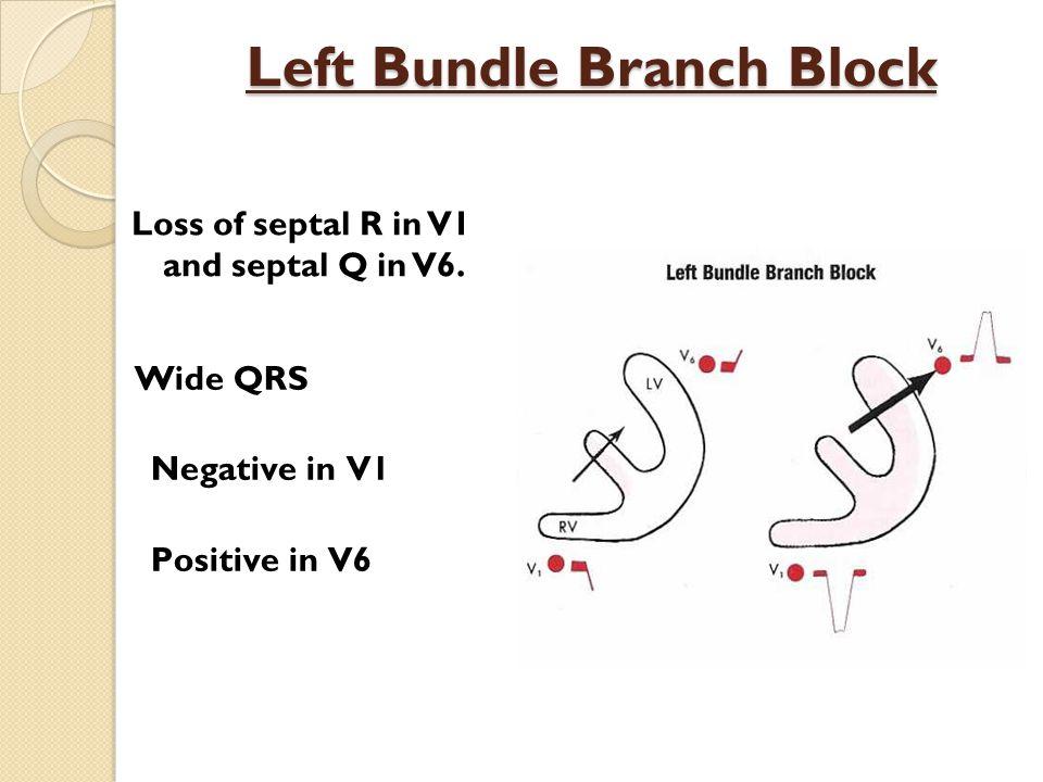 Left Bundle Branch Block Loss of septal R in V1 and septal Q in V6.