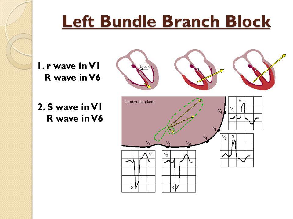 Left Bundle Branch Block 1. r wave in V1 R wave in V6 2. S wave in V1 R wave in V6