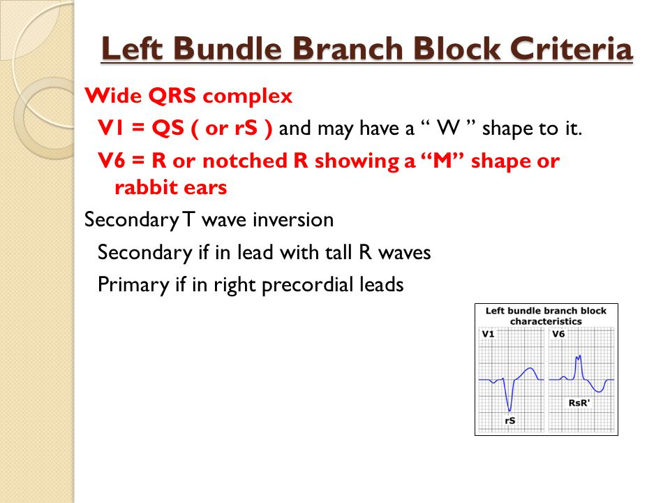 Left Bundle Branch Block Criteria Wide QRS complex V1 = QS ( or rS ) and may have a W shape to it.