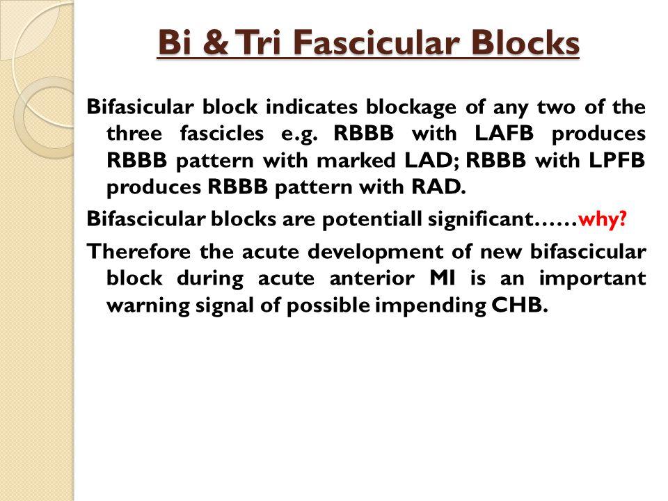 Bi & Tri Fascicular Blocks Bifasicular block indicates blockage of any two of the three fascicles e.g.