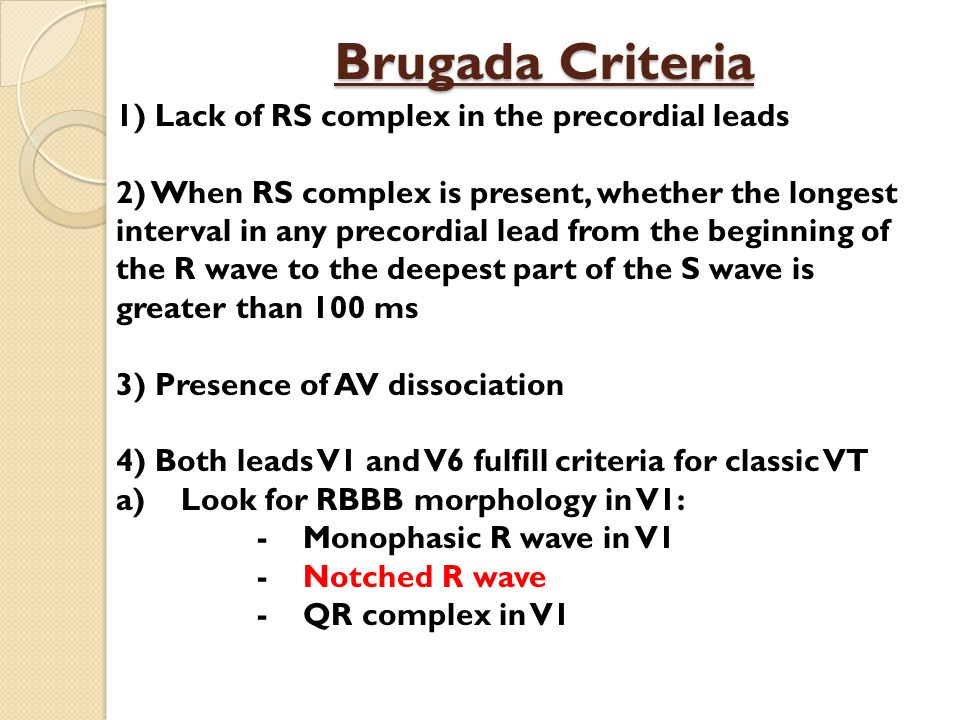 Brugada Criteria 1) Lack of RS complex in the precordial leads 2) When RS complex is present, whether the longest interval in any precordial lead from the beginning of the R wave to the deepest part of the S wave is greater than 100 ms 3) Presence of AV dissociation 4) Both leads V1 and V6 fulfill criteria for classic VT a) Look for RBBB morphology in V1: - Monophasic R wave in V1 - Notched R wave - QR complex in V1