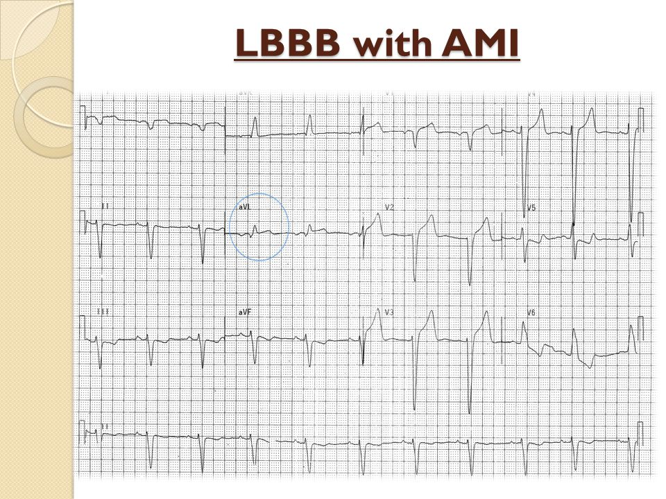 LBBB with AMI