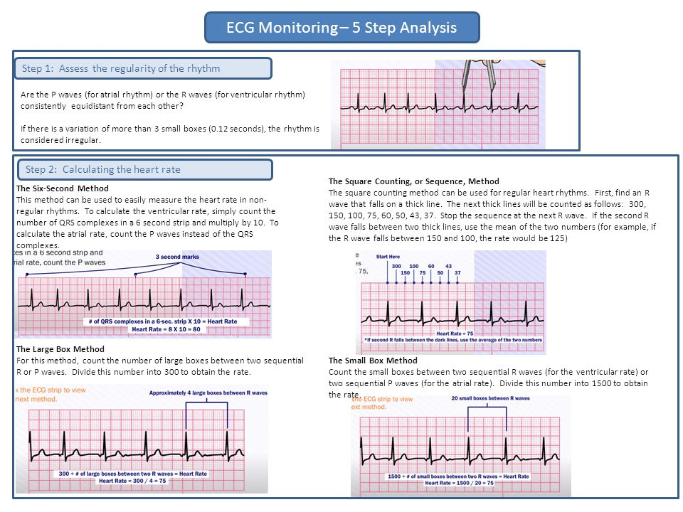 The Six-Second Method This method can be used to easily measure the heart rate in non- regular rhythms. To calculate the ventricular rate, simply coun