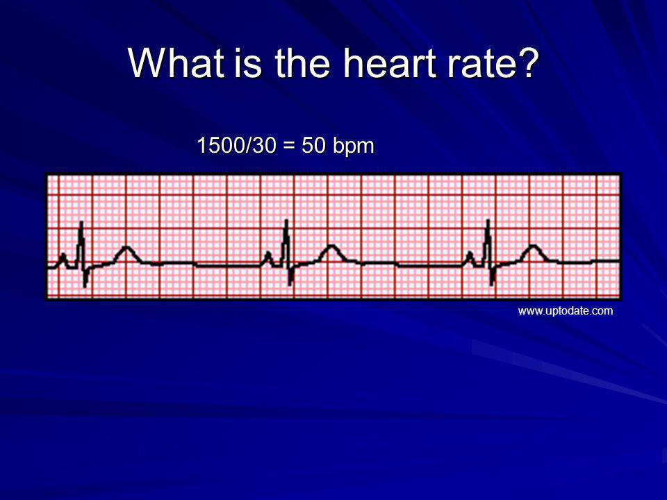 What is the heart rate? 1500/30 = 50 bpm www.uptodate.com