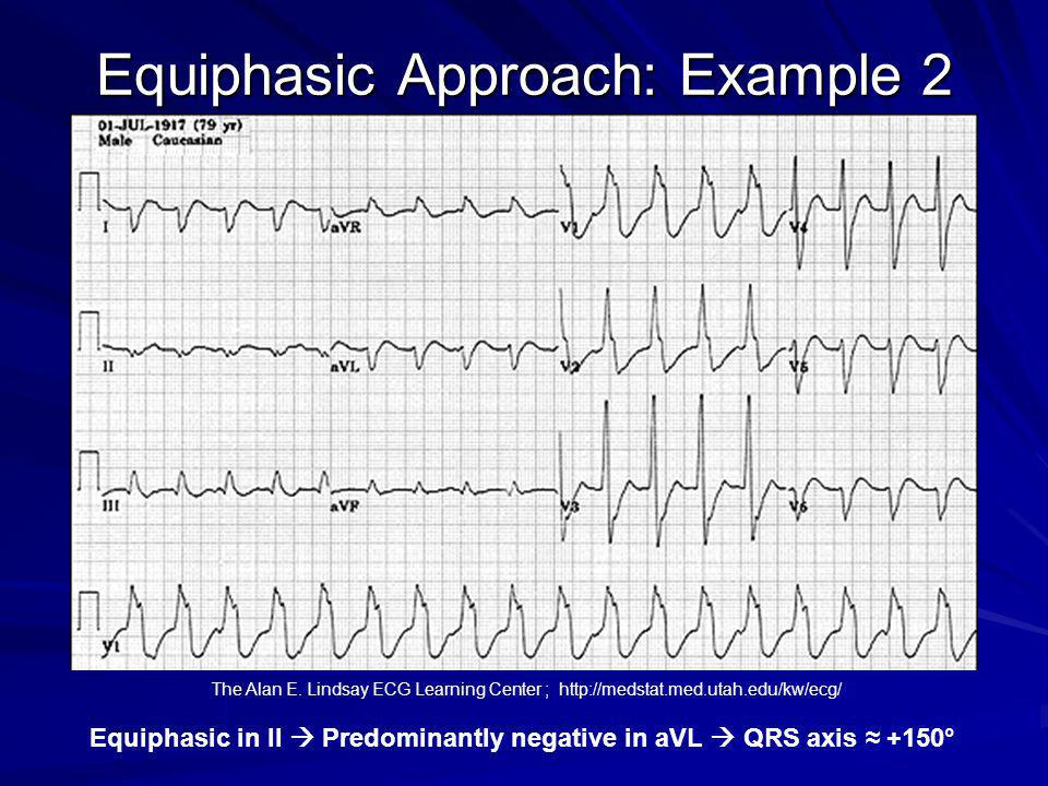 Equiphasic Approach: Example 2 Equiphasic in II Predominantly negative in aVL QRS axis +150° The Alan E. Lindsay ECG Learning Center ; http://medstat.