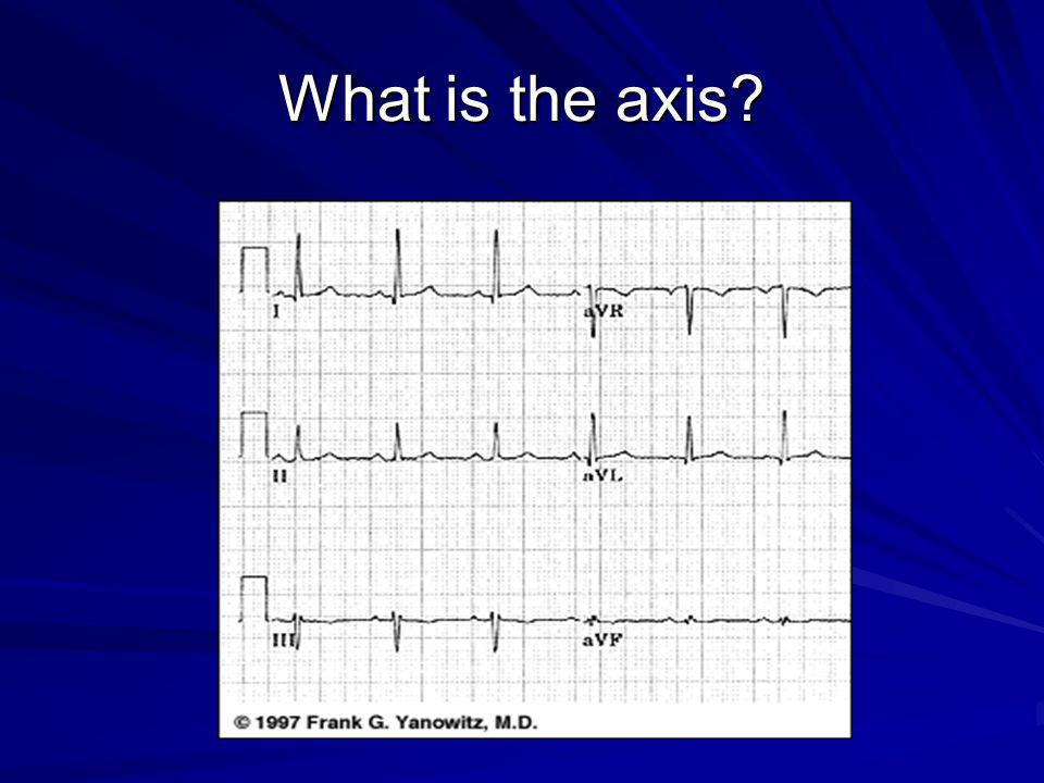 What is the axis?