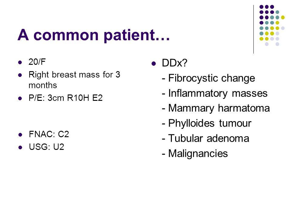 A common patient… Mx: Local excision Path: Fibroadenoma 20/F Right breast mass for 3 months P/E: 3cm R10H E2 FNAC: C2 USG: R2
