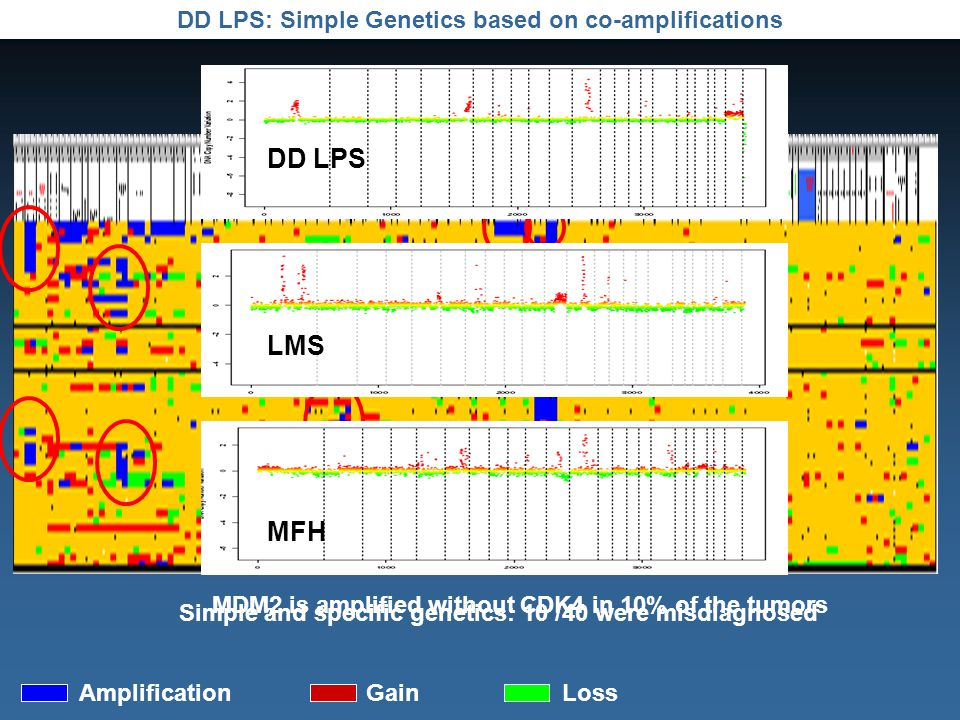 DD LPS: Simple Genetics based on co-amplifications AmplificationGainLoss MDM2 is amplified without CDK4 in 10% of the tumors Simple and specific genetics: 10 /40 were misdiagnosed DD LPS LMS MFH