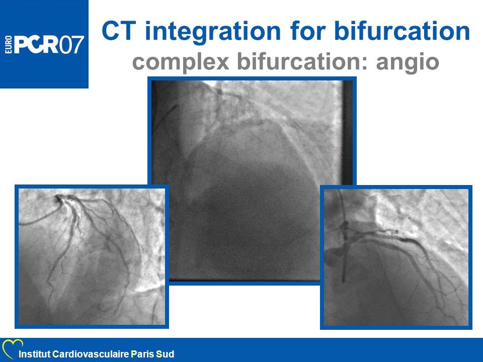 CT integration for bifurcation complex bifurcation: angio Institut Cardiovasculaire Paris Sud