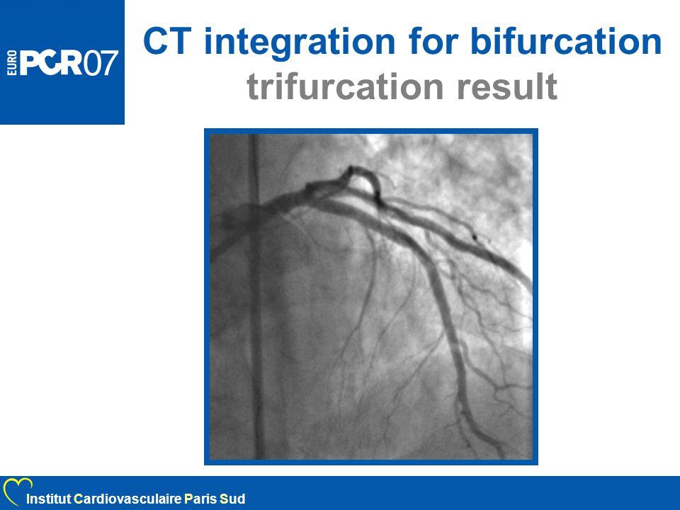 CT integration for bifurcation trifurcation result Institut Cardiovasculaire Paris Sud