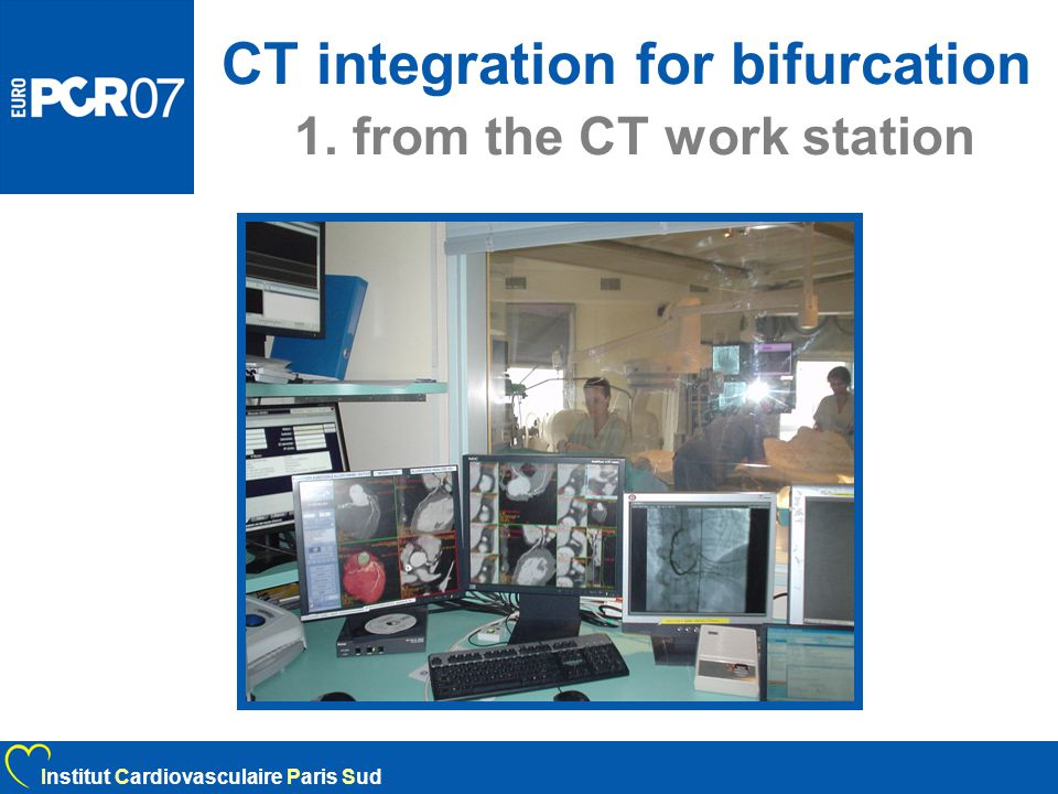 CT integration for bifurcation 1. from the CT work station Institut Cardiovasculaire Paris Sud