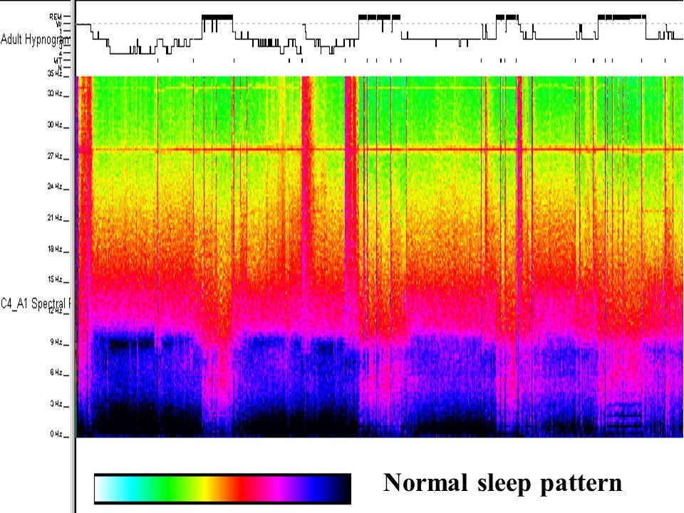 Normal sleep pattern