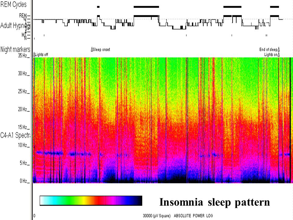 Insomnia sleep pattern