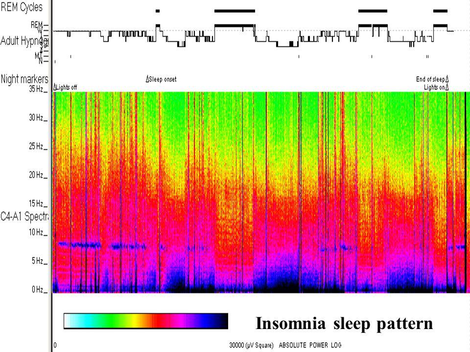 Insomnia sleep pattern
