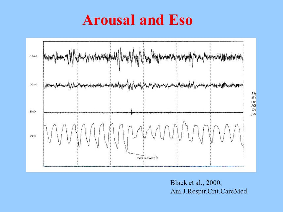 Arousal and Eso Black et al., 2000, Am.J.Respir.Crit.CareMed.