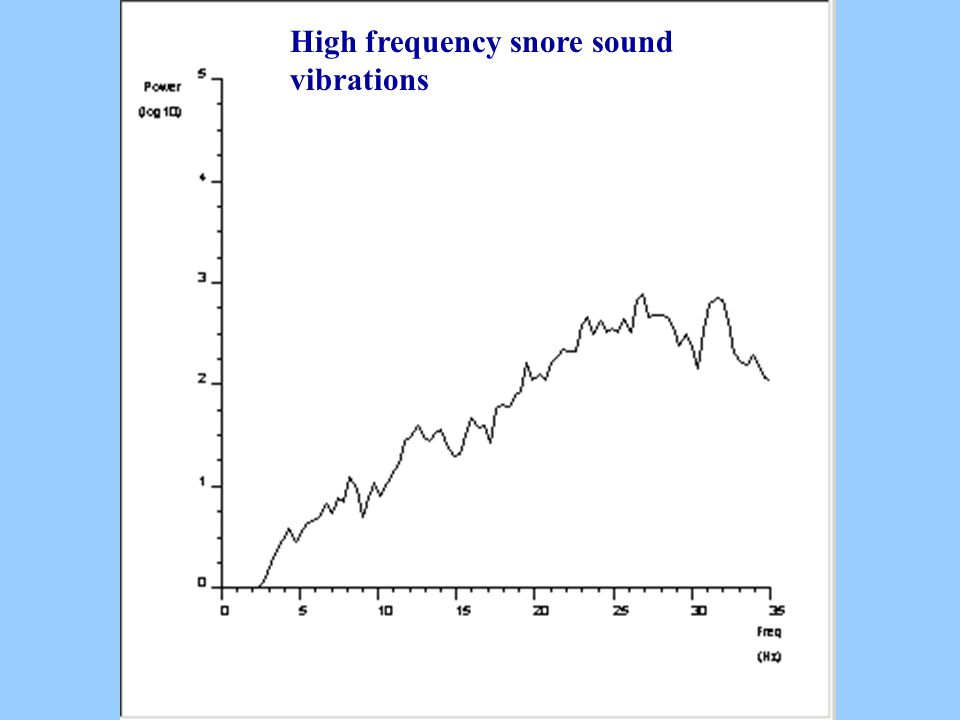 High frequency snore sound vibrations