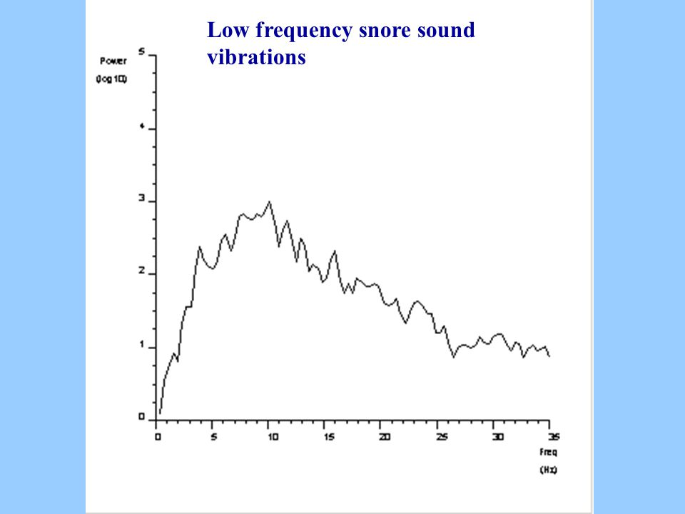Low frequency snore sound vibrations