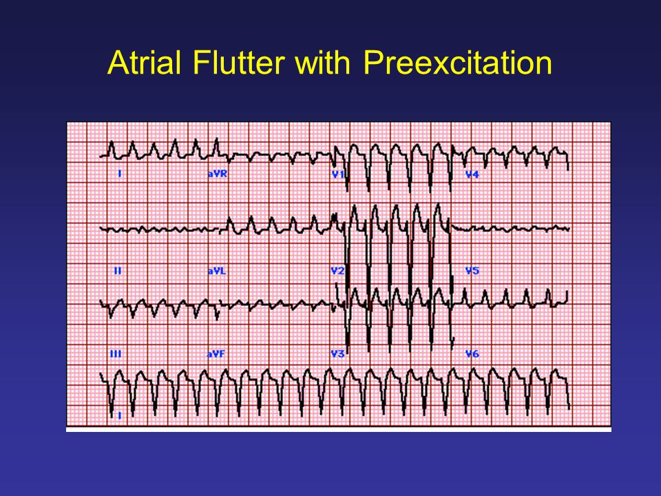 Atrial Flutter with Preexcitation