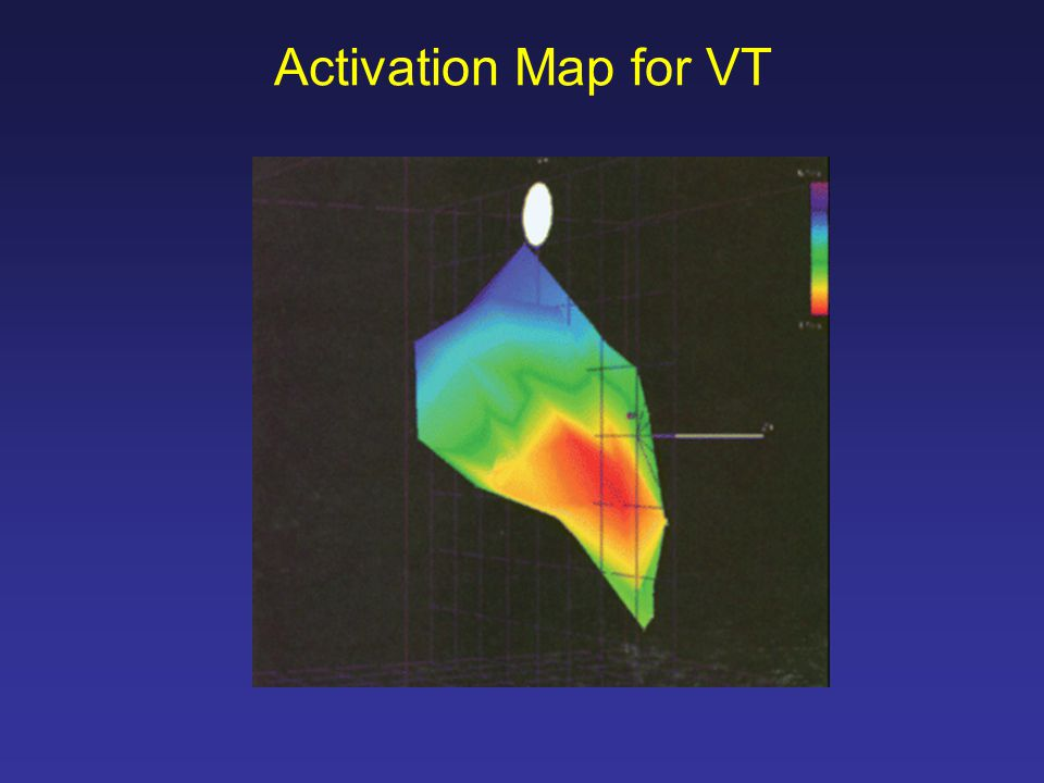 Activation Map for VT