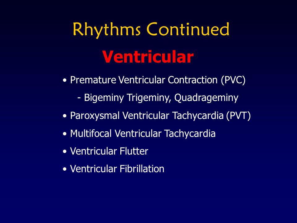 Rhythms Continued Premature Ventricular Contraction (PVC) - Bigeminy Trigeminy, Quadrageminy Paroxysmal Ventricular Tachycardia (PVT) Multifocal Ventr