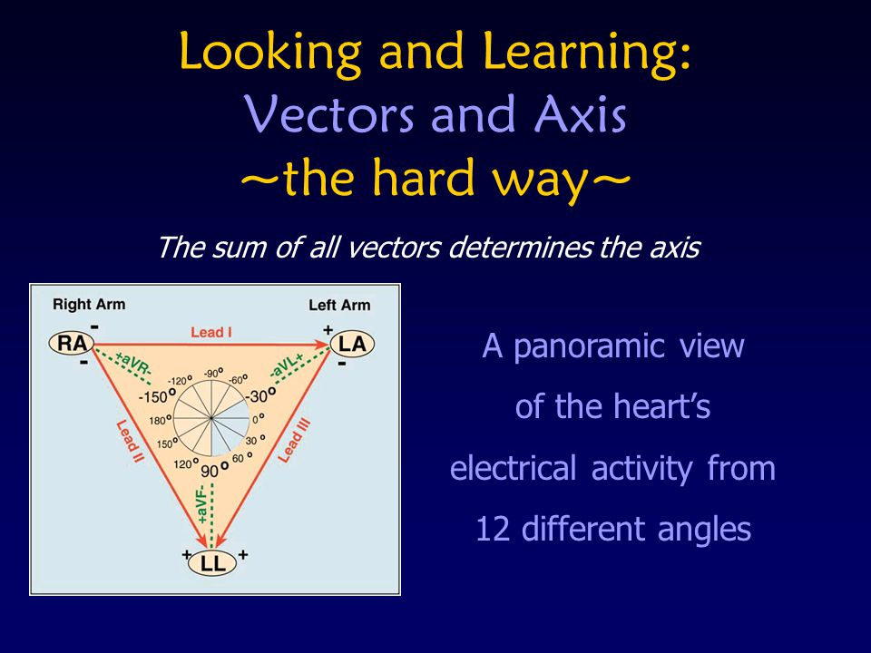 Looking and Learning: Vectors and Axis ~the hard way~ A panoramic view of the hearts electrical activity from 12 different angles The sum of all vecto