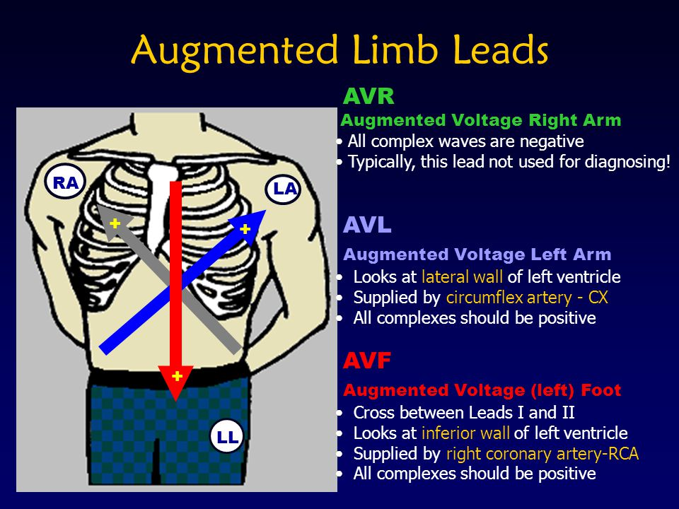 Augmented Limb Leads LA RA LL + + + AVR Augmented Voltage Right Arm All complex waves are negative Typically, this lead not used for diagnosing! AVL A