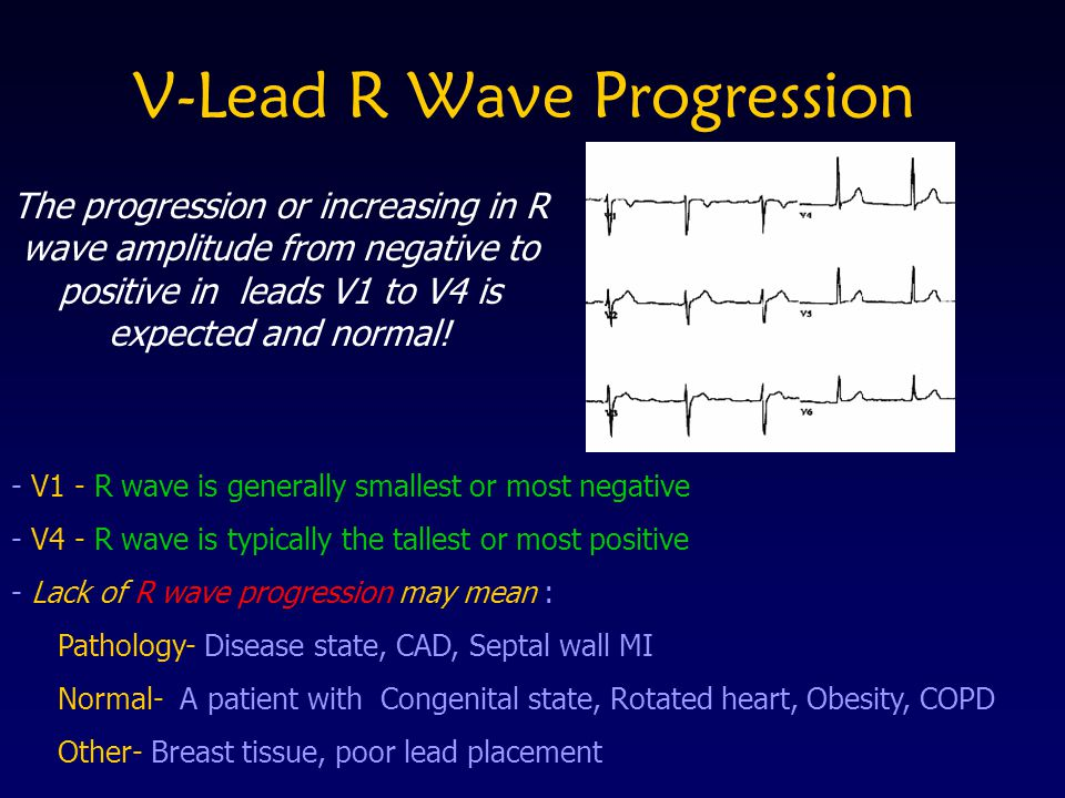V-Lead R Wave Progression - V1 - R wave is generally smallest or most negative - V4 - R wave is typically the tallest or most positive - Lack of R wav