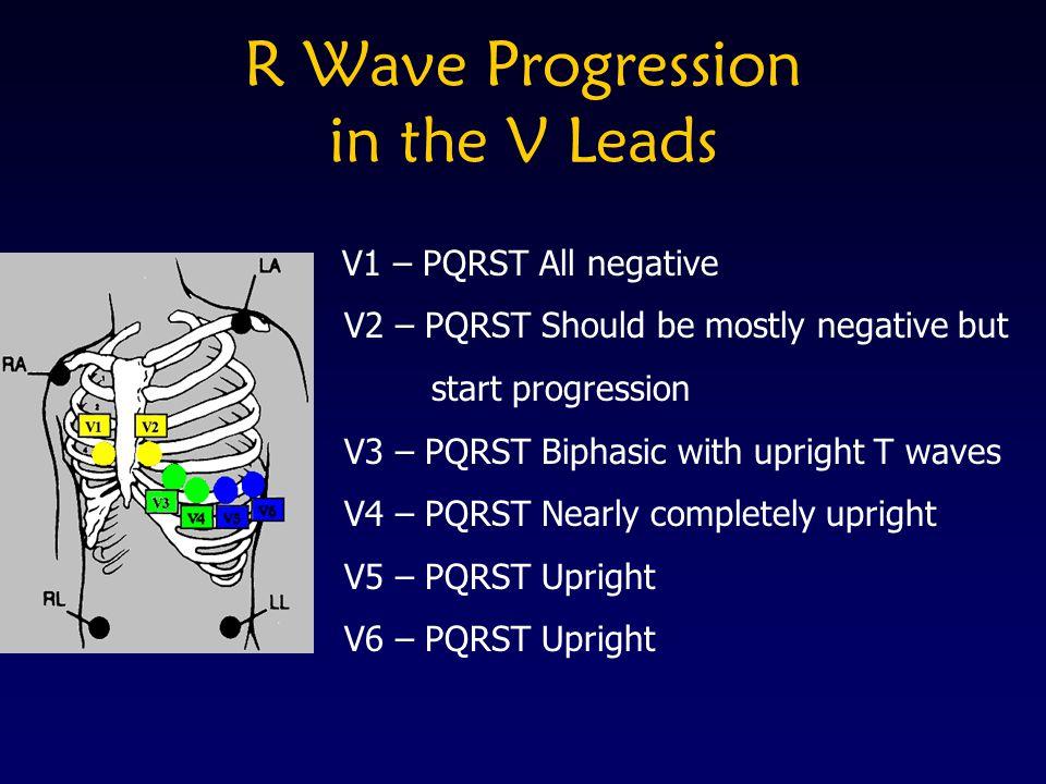 R Wave Progression in the V Leads V1 – PQRST All negative V2 – PQRST Should be mostly negative but start progression V3 – PQRST Biphasic with upright