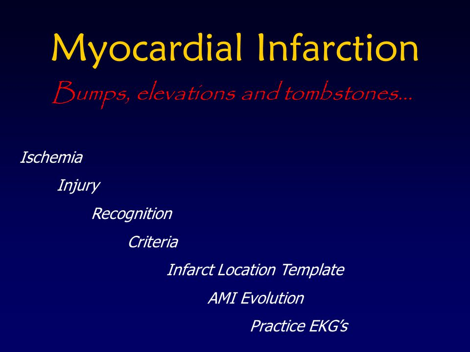 Myocardial Infarction Ischemia Injury Recognition Criteria Infarct Location Template AMI Evolution Practice EKGs Bumps, elevations and tombstones…