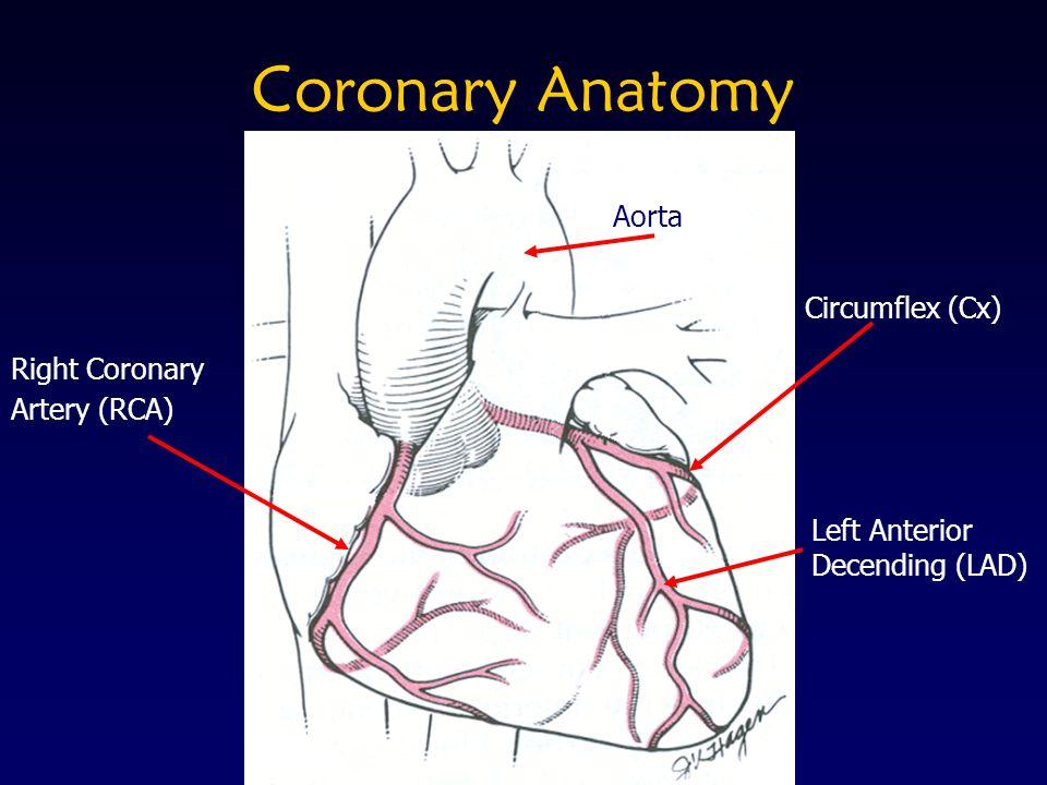 Coronary Anatomy Right Coronary Artery (RCA) Aorta Circumflex (Cx) Left Anterior Decending (LAD)