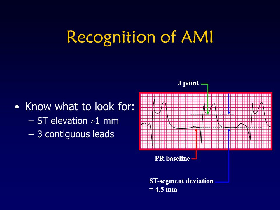 Recognition of AMI Know what to look for: –ST elevation > 1 mm –3 contiguous leads PR baseline ST-segment deviation = 4.5 mm J point