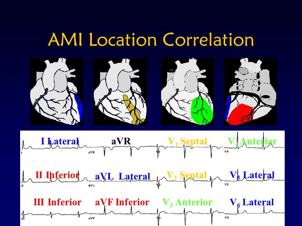 AMI Location Correlation aVF InferiorIII InferiorV 3 Anterior V 6 Lateral aVL Lateral II InferiorV 2 SeptalV 5 Lateral aVRI LateralV 1 SeptalV 4 Anter