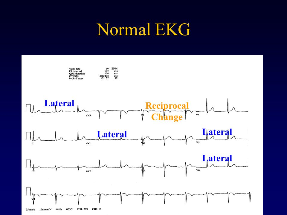 Normal EKG Lateral Reciprocal Change