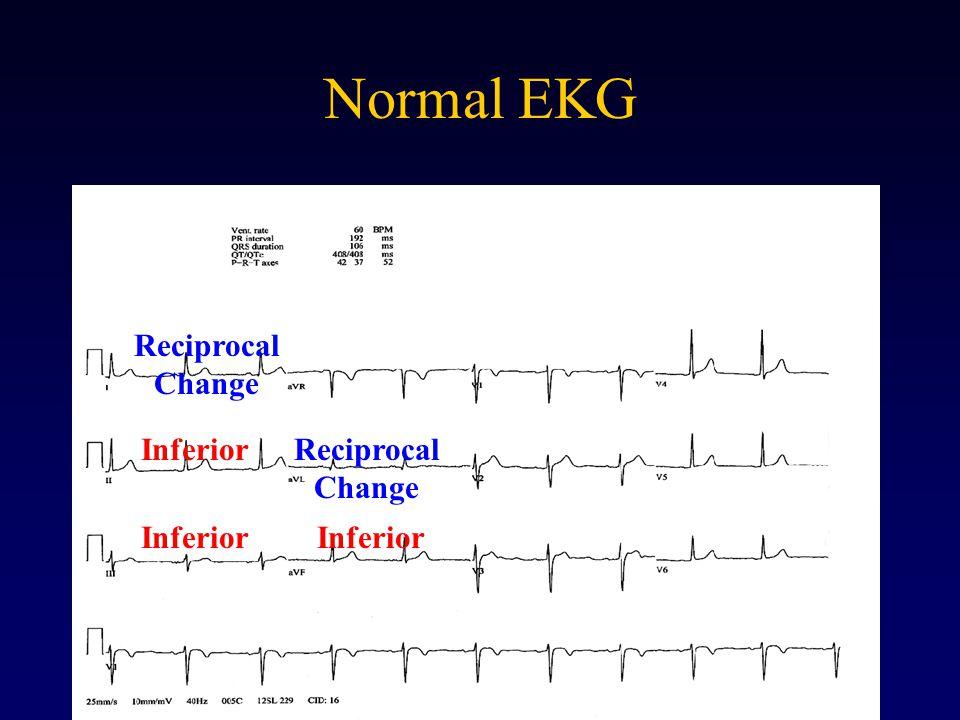 Normal EKG Inferior Reciprocal Change