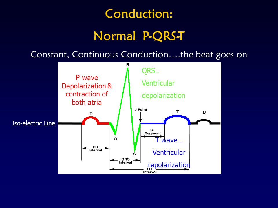 Conduction: Normal P-QRS-T Constant, Continuous Conduction….the beat goes on Q - First down slope R - Upward slope S-Down slope Iso-electric Line