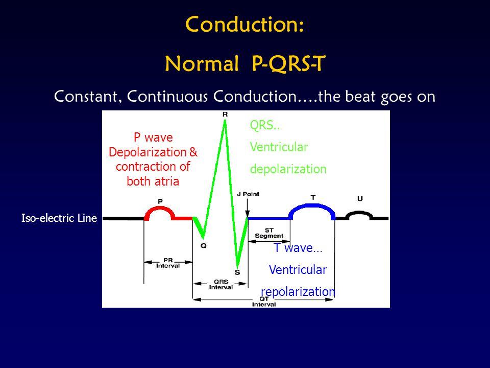 Rhythms Continued 1 Prolonged PRI 2 Type I - Wenchebach 2 Type II - Mobitz II - 2:1, 3:1 Conduction 3 Complete Heart Block Bundle Branch - Right BB - Left BB AV Blocks