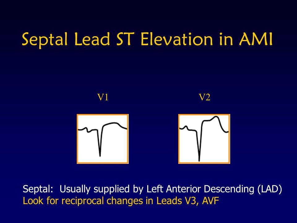 Septal Lead ST Elevation in AMI V1V2 Septal: Usually supplied by Left Anterior Descending (LAD) Look for reciprocal changes in Leads V3, AVF