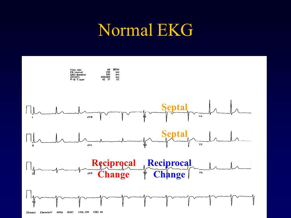 Normal EKG Septal Reciprocal Change