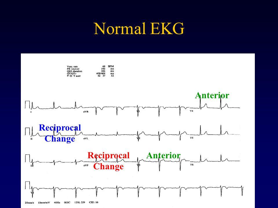 Normal EKG Anterior Reciprocal Change
